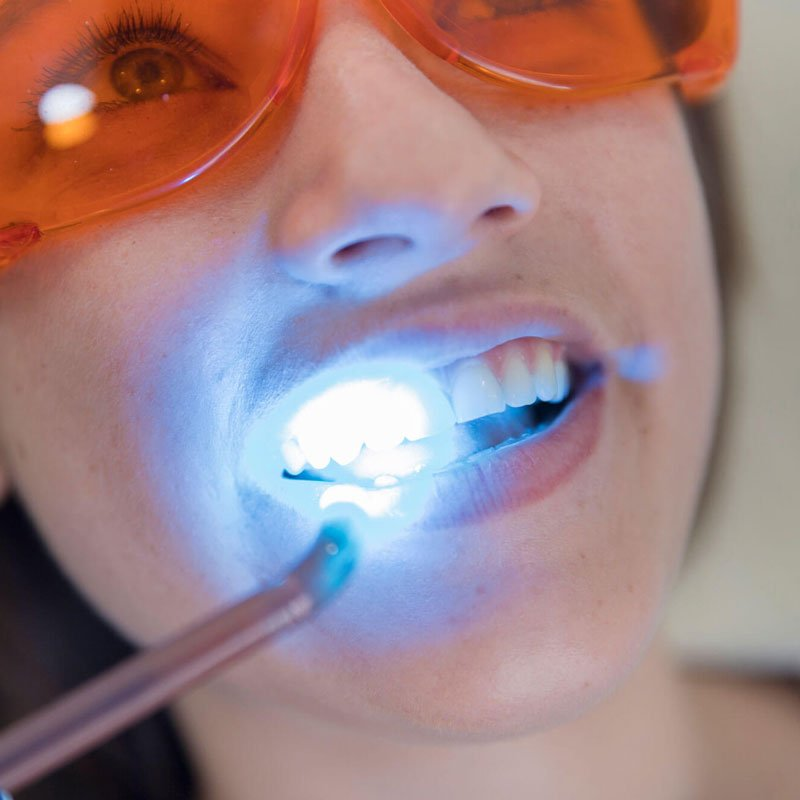 Sealants At Alpenglow Dental In Bend, Oregon