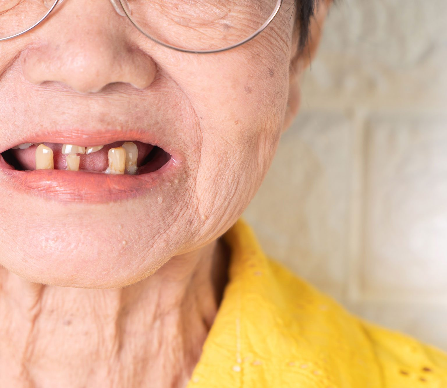 Geriatric & Family Dentistry At Alpenglow Dental In Bend, Oregon